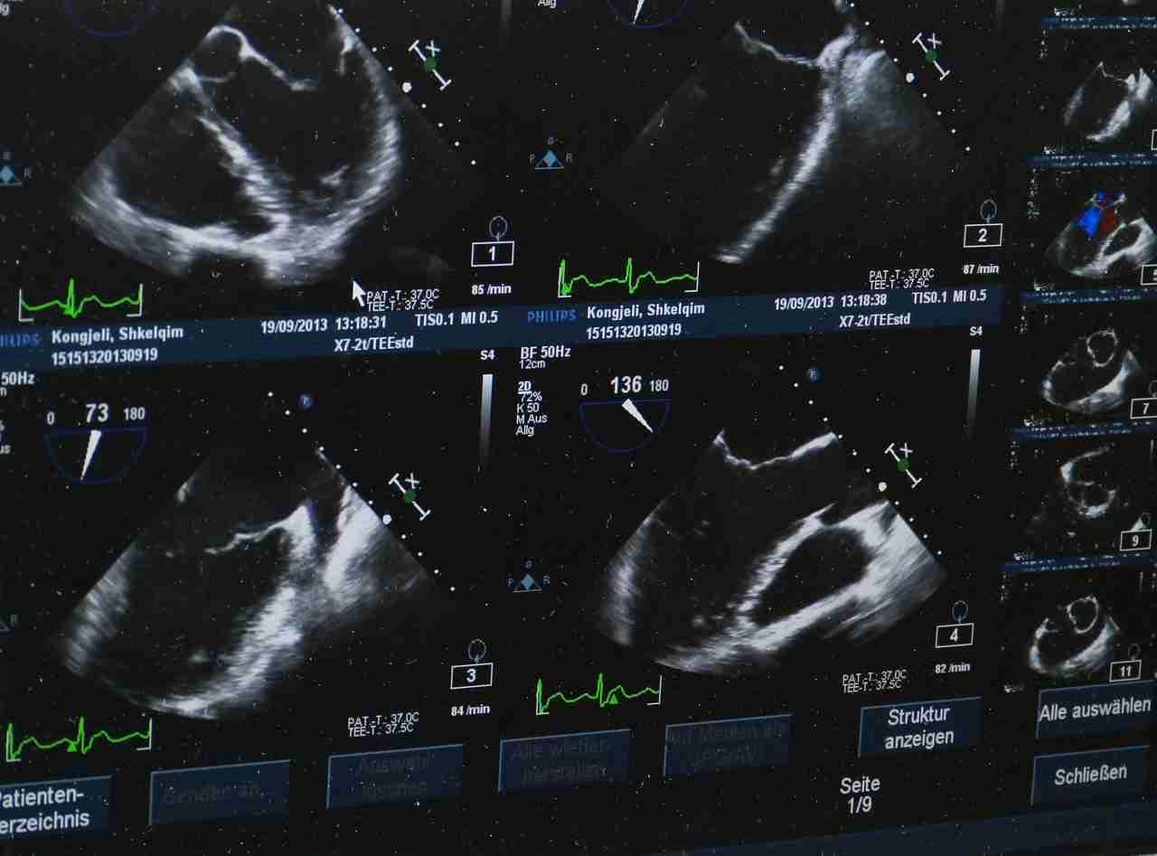Ultraschall Erklärung